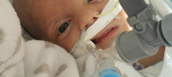 skeptical-world-cardiomyopathy-congenital-heart-defect-baby-frank-zillins-10-weeks